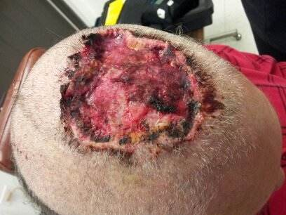 Head Wound Case (Warning: Graphic Images) (medicinal herbs