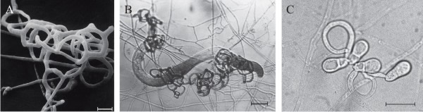 [Thumbnail for NEMATODE-TRAPPER-fungal_trapping_constricting_rings_of_Arthrobotrys_oligospora-_by_Nordbring-Hertz-_Elsevier-_DavidMoore.org.uk.jpg]