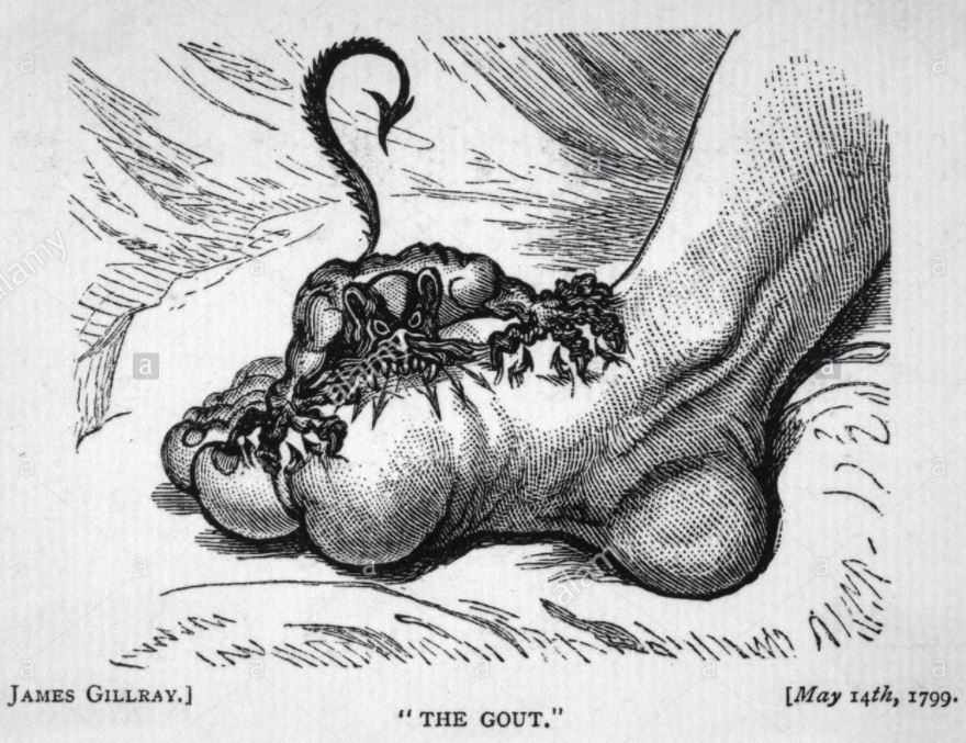 Gout and blood type - might there be a relationship? And the