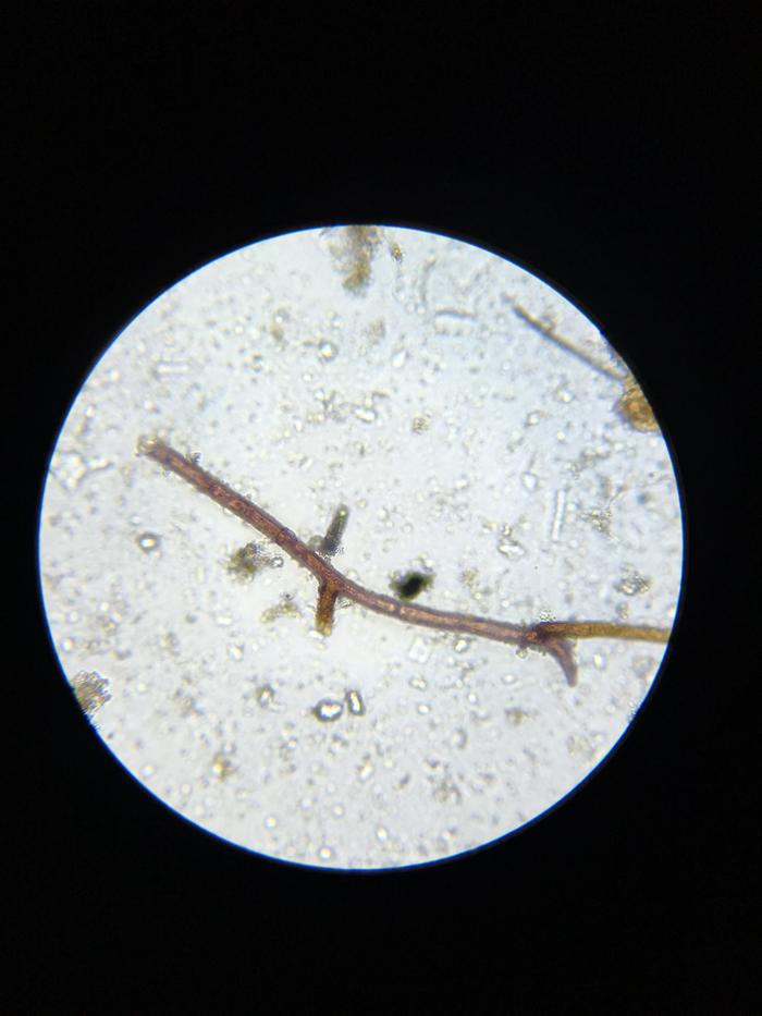 [Thumbnail for A-snapshot-of-a-fungal-hypha-taken-during-a-soil-microscopy-session..jpg]